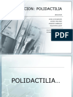 polidactilia