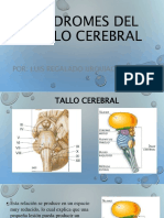 Sindromedeltallocerebral 141127213429 Conversion Gate01