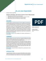Ictiosis Arlequin Un Caso Impactante