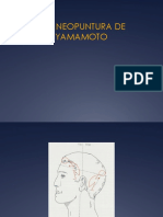 Craneopuntura de Yamamoto