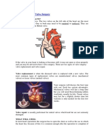 All About Cardiac Valve Surgery