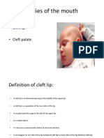 cleft lip & palate.pptx