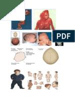 338074501 Atrofia Muscular Progresiva PDF