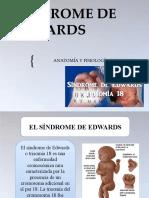 SÍNDROME DE EDWARDS.pptx