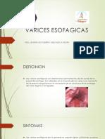 VARICES ESOFAGICAS.pptx