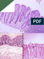 C2-Boala Crohn si rectocolita ulcerohemoragica.pdf