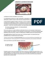 Ferulización en periodonto disminuido.docx