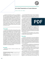 IE pada acute abdomen.pdf