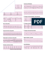 ACLS.docx