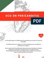 ECG en Pericarditis