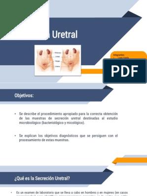 uretritis en hombres rápidamente