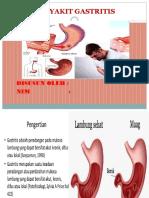 Gastritis, Amiruddin