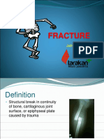 Fracture(1)