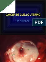 Ca cervico uterino 2