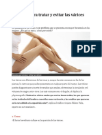 consejos para tratar y evitar varices por dr nelson pena.docx