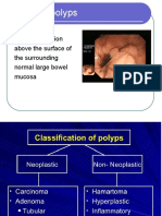 Polyps Surgical