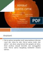 341464831-Neuritis-Optik-PPT.pptx