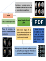 Presentacióndel Cerebro