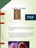 Atresia Bilateral