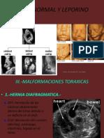2da-DISMORFOLOGIA-FETAL.pdf