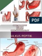 Patofisiologi Maag