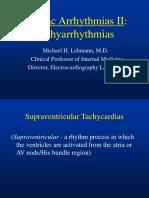 D Tachycardialecture