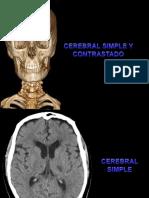 CEREBRAL SY C-1.pptx