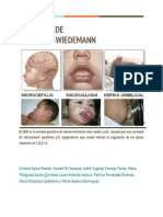 Síndrome de Beckwith-Wiedemann