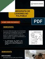 Mamografía de Lesiones No Palpable