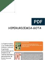 Hiperuricemia Gota