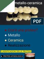 Tesina metallo - ceramica