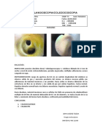 INFORME DE COLANGIOSCOPIA.docx