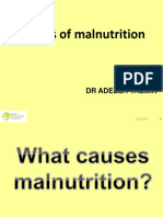 NIE Lecture 4 Causes_of_malnutrition -1