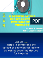 A Review of the Use of Laser In