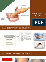 Pancreatitis Aguda- Emergencias