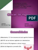 CA de Vagina