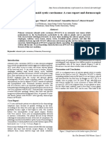 Primary Cutaneous Adenoid Cystic Carcinoma a Case Report and Dermoscopic Fndings