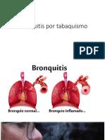 Bronquitis Por Tabaquismo