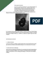 PATOLOGIA MORFOLOGIA DEL ANILLO DE SHATSKY.docx
