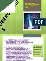 Tuberculosis Educacion Para La Slaud