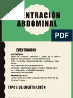 Eventracion Abdominal Ppt