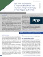 Ashwin Shetty Et Al. Dynamic Hip Screw With Trochanteric Stablization Plate Fixation