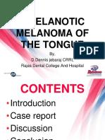 Amelanotic Melanoma of the Tongue