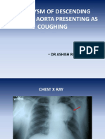 Case 2 Aneurysm of Descending Thoracic Aorta Presenting as Coughing