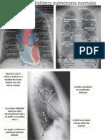 Anatomia Radiologica Pulmonar Normal