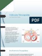 Valvula Tricuspide. Anatomia, Fisiopatologia y Clinica