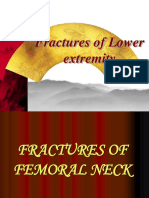 Fractures of the Lower Extremity