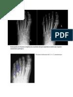 Radiografías de fractura completa de escafoides del pie izquierdo en atleta que requirió tratamiento quirúrgico.docx