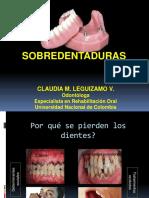 CML-SOBREDENTADURAS