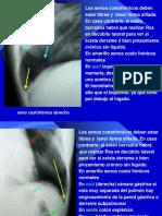Semiologia Radiologica Del Torax-clase Vi (3)